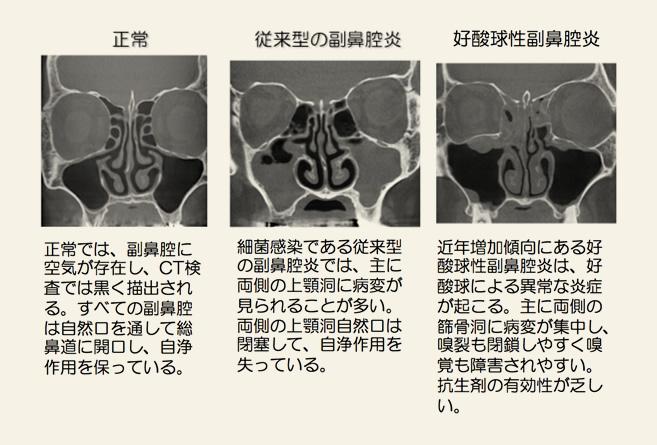 鼻腔 炎 副