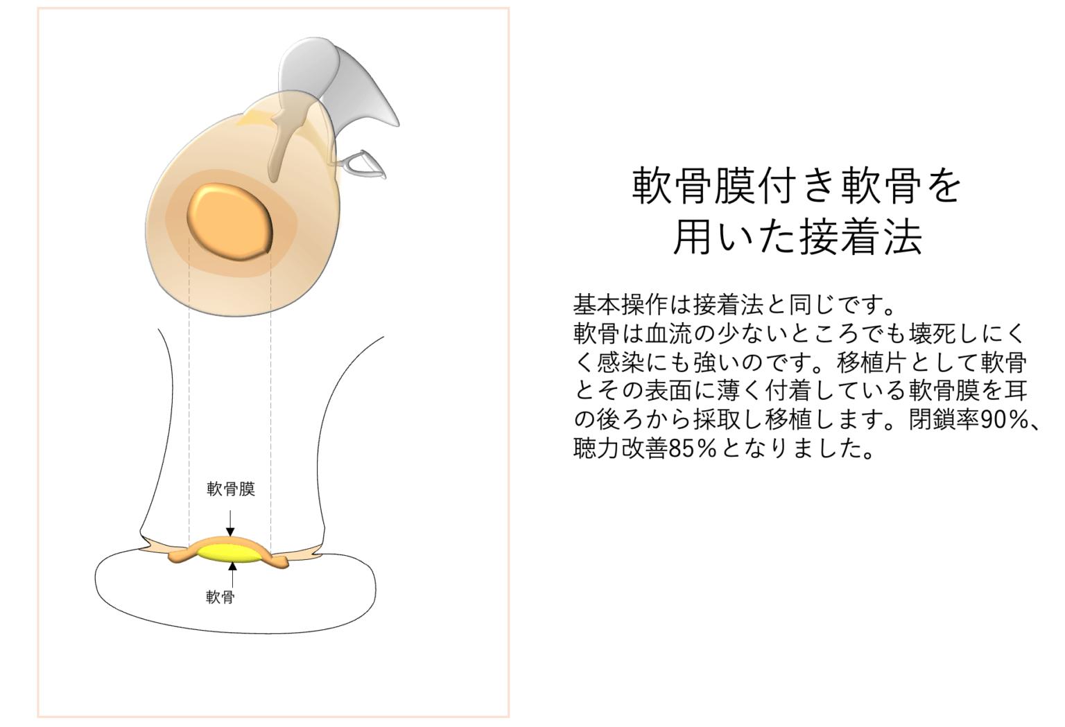 軟骨膜付き軟骨を用いた接着法