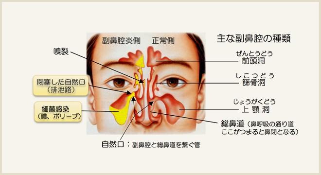 図解で見る副鼻腔炎