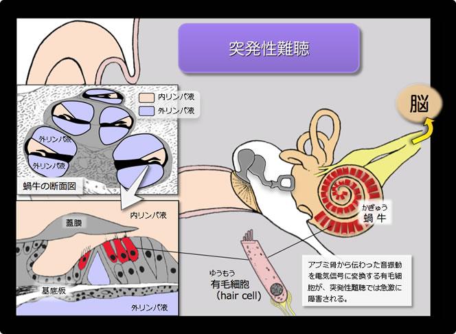 突発性難聴の図解