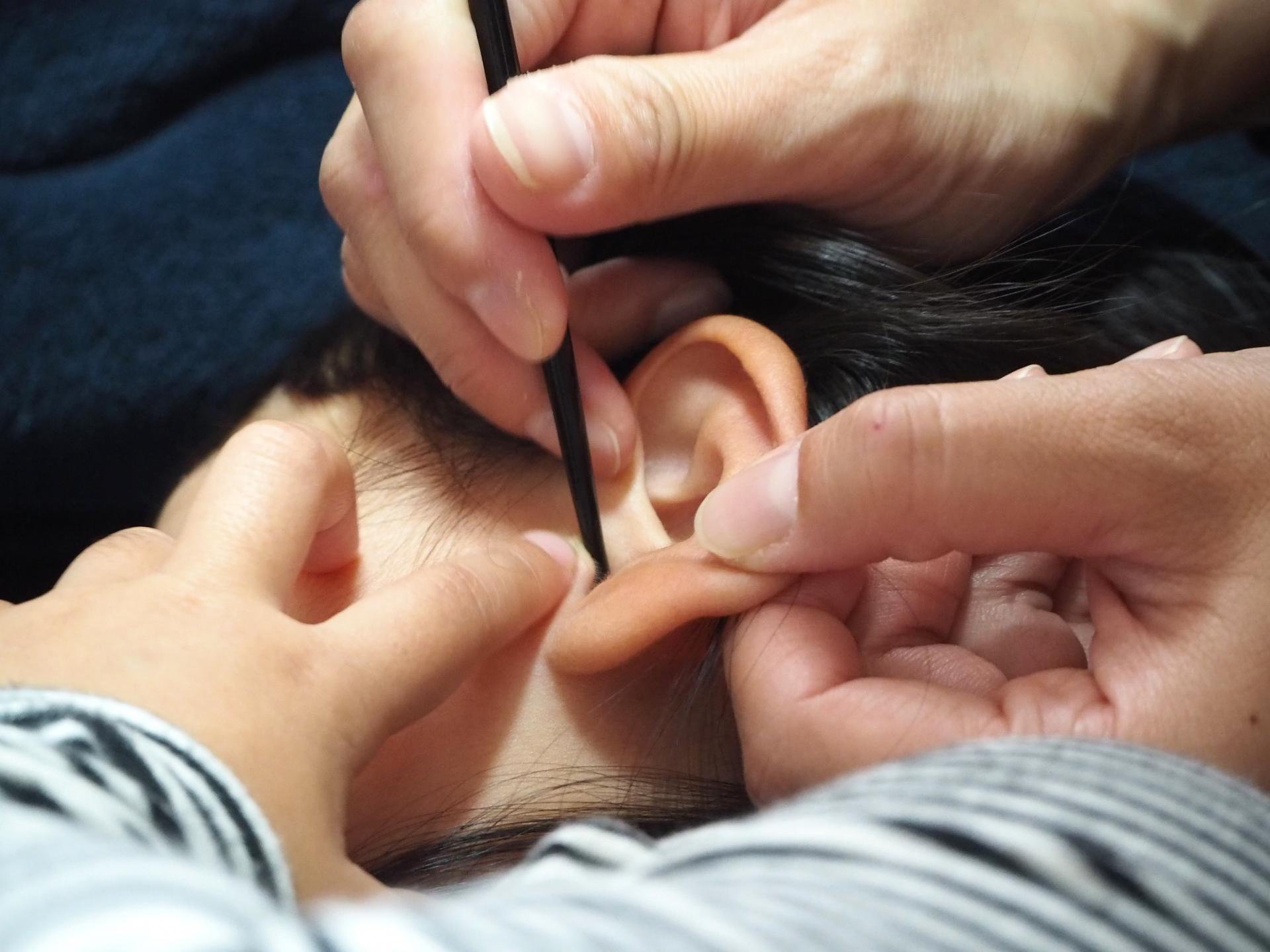が 痒い の 中 耳