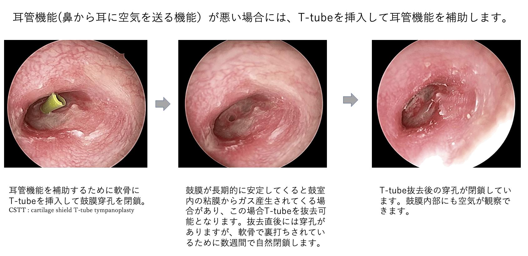 耳管機能が割る場合には、T-tubeを挿入して耳管機能を補助します。